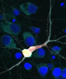 Brain cell with TDP43 and hUPF1 highlighted