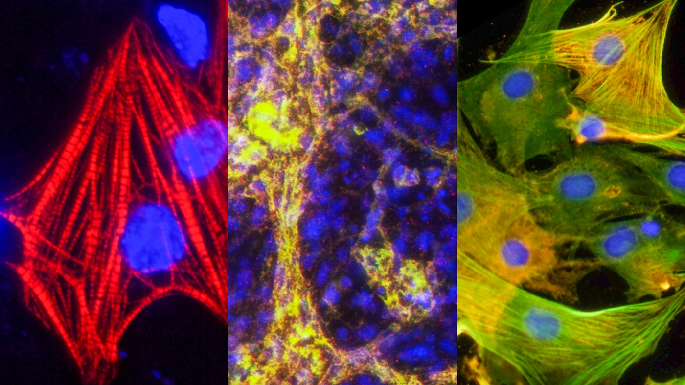 Heart cells created from ieCPCs