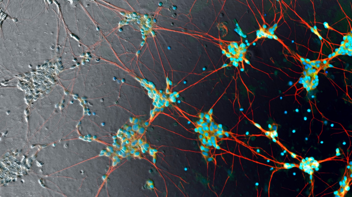Human induced pluripotent stem cell neurons, Steve Finkbeiner/Google