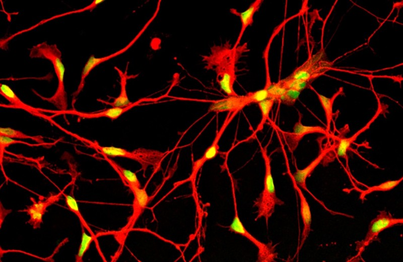 Human inhibitory neurons composite image